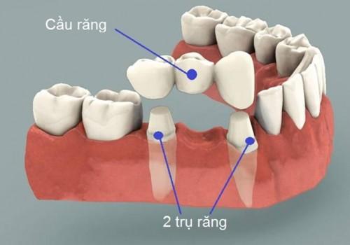 TƯ VẤN Răng số 7 bị hỏng có nên nhổ để trồng lại răng ngay không? 2