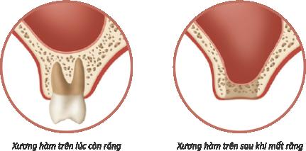 Ghép xương khi trồng răng Implant & những điều cần biết - ảnh 1