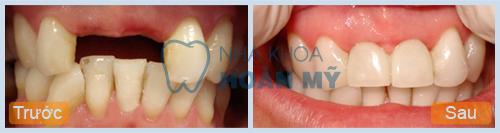 Có nên trồng răng hàm bằng implant không