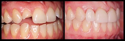 Phương pháp Trồng Răng Sứ bằng cầu hay cấy ghép tốt hơn - ảnh 1
