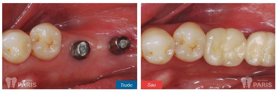 Trồng răng hàm số 7 nên thực hiện theo phương pháp nào? - ảnh 1