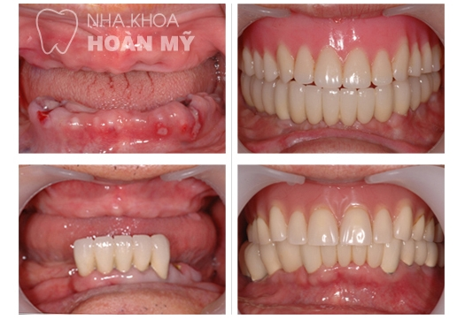 implant-4s-nhakhoahoanmy
