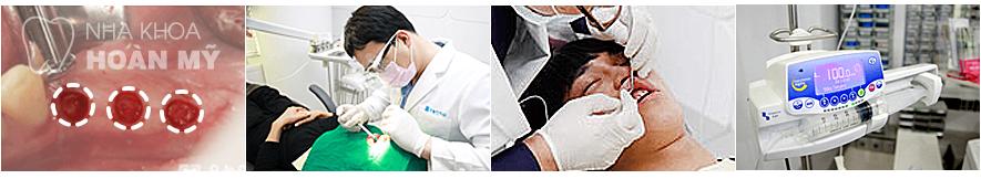 implant-4s-nhakhoahoanmy1