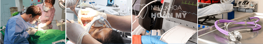 implant-4s-nhakhoahoanmy5