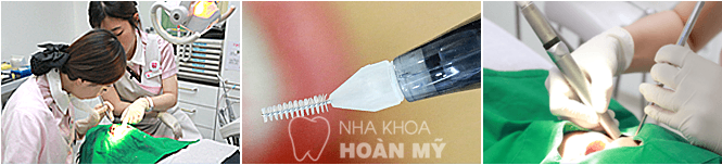 implant-4s-nhakhoahoanmy7