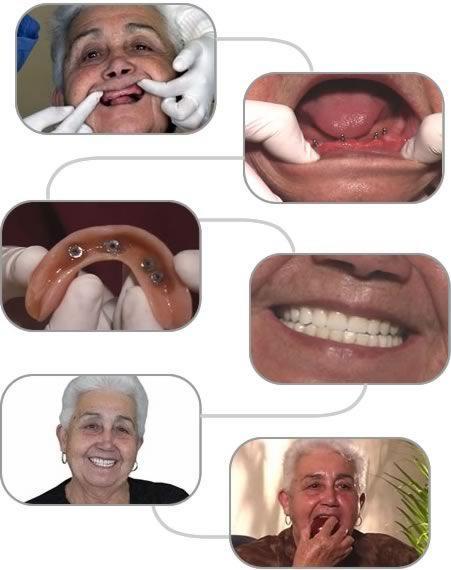 Trồng răng giả tháo lắp loại nào tốt? Răng giả có bao nhiêu kiểu? 1