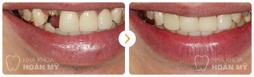 Nên trồng răng loại nào thì tốt nhất khi mất nhiều răng?