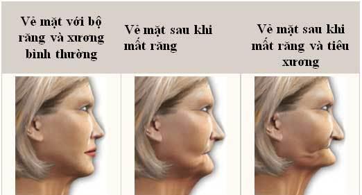Phương pháp làm răng giả cố định cho người già