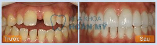 Răng cửa thưa phải làm sao để khắc phục cho đều khít? 1