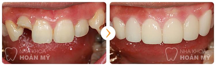 Làm răng sứ có đau và có hại cho răng không?