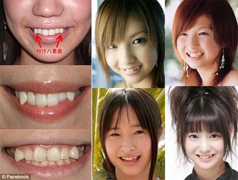Làm thế nào để có răng khểnh thẩm mỹ nhất