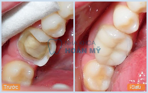 Có nên làm răng sứ cho răng hàm bị vỡ lớn hay không?