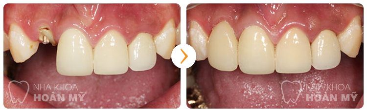 Làm cầu răng có độ bền trong bao lâu?