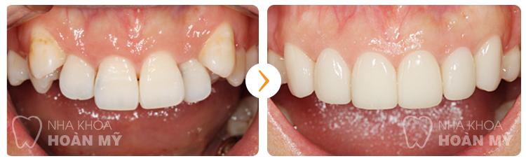 Tại Hoàn Mỹ làm răng sứ giá bao nhiêu?