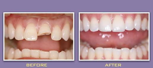 Bọc răng sứ cho răng cửa bị vỡ có độ bền tối đa bao lâu? - Ảnh 1