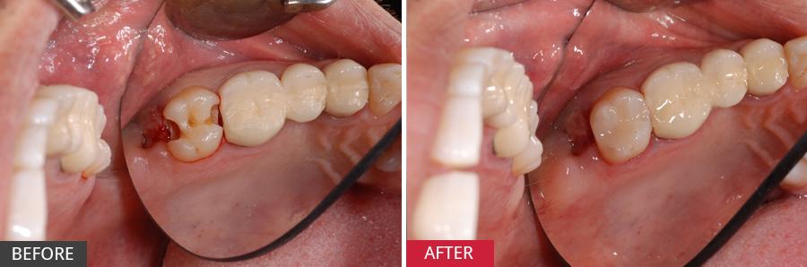 Làm sao để hết đau răng nhanh nhất? - Cách điều trị triệt để - Ảnh 3