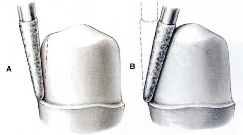 Giải đáp thắc mắc: Mài răng có ảnh hưởng gì không? 1