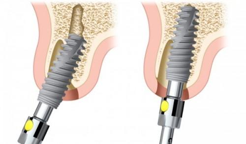 Tại sao khi cấy ghép implant bị thất bại? - Cách khắc phục - Ảnh 1