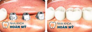 Câu hỏi:  Chào bác sĩ nha khoa Hoàn Mỹ. Cách đây 8 tháng em bị mất một chiếc răng cửa nên nhìn khá mất thẩm mỹ, lúc mới mất răng có nhiều người khuyên em nên đi làm răng implant nhưng vì sợ đau và cũng chưa tìm ra được địa chỉ nha khoa uy tín nên em chưa dám đi. Mong bác sĩ tư vấn giúp em làm sao để lựa chọn ra địa chỉ làm răng implant ở đâu an toàn và uy tín được ak. ( Hiền My - Nam Định)  Trả lời:  Chào bạn, cảm ơn bạn đã quan tâm và gủi câu hỏi về cho nha khoa Hoàn Mỹ. Bạn đang muốn tìm địa chỉ làm răng implant uy tín, chúng tôi xin đưa ra một số ý kiến sau hy vọng sẽ giúp bạn giải quyết được vấn đề này.    Nên lựa chọn địa chỉ làm răng implant như thế nào ?  Làm răng implant là một phương pháp nha khoa phục hồi trong trường hợp mất một, nhiều hay toàn hàm răng, giúp bạn có lại hàm răng hoàn chỉnh, thực hiện chức năng ăn nhai dễ dàng và đảm bảo tính thẩm mỹ của hàm răng cũng như nụ cười. So với các phương pháp làm răng khác như làm cầu răng, hàm giả tháo lắp thì làm răng implant là một phương án an toàn và mang lại hiệu quả vĩnh viễn.  Khi thực hiện làm răng implant an toàn và mang lại hiệu quả thẩm mỹ cao, không đau thì việc lựa chọn địa chỉ làm răng implant uy tín là điều vô cùng quan trọng quyết định phần lớn đến thành công mà bạn sẽ có được vì thế khi muốn tìm địa chỉ làm răng implant bạn nên quan tâm đến những yếu tố sau:  – Đội ngũ bác sĩ: Bạn nên tìm hiểu thật kỹ đến trình độ chuyên môn, tay nghề của bác sĩ vì yếu tố bác sỹ đóng vai trò quan trọng quyết định phần lớn đến sự thành bại của ca làm răng implant.  Nha khoa Hoàn Mỹ tự hào khi hội tụ một đội ngũ bác sĩ dày dặn kinh nghiệm, có trình độ chuyên môn và tay nghề cao, thực hiện thành công hàng ngàn ca làm răng implant với nhiều trường hợp từ đơn giản đến phức tạp. Vì thế bạn có thể an tâm về chất lượng chuyên môn.  – Trang thiết bị: Ngoài yếu tố về chuyên môn thì sự hỗ trợ của các trang thiết bị là vô cùng quan trọng. Ở một số trung tâm nha khoa hiện nay việc kiểm tra thăm khám cấu trúc xương hàm, độ x