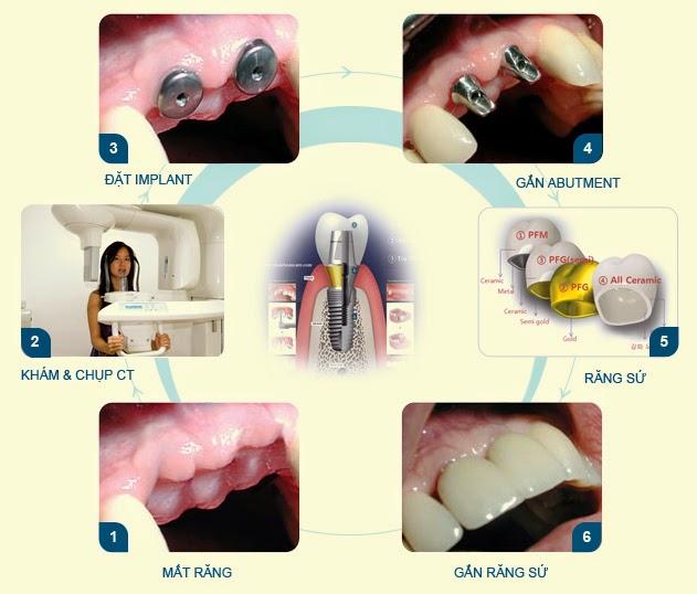 Trồng răng hàm bị mất nên thực hiện theo phương pháp nào? 3
