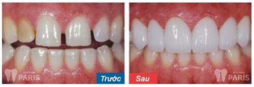 Giá chụp răng sứ thẩm mỹ bao nhiêu tiền? Quá trình chụp răng sứ? 12