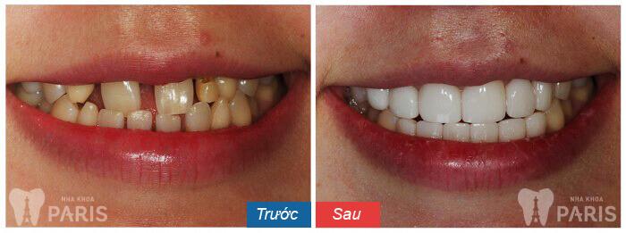 Giá chụp răng sứ thẩm mỹ bao nhiêu tiền? Quá trình chụp răng sứ? 14