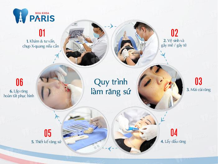 Giá chụp răng sứ thẩm mỹ bao nhiêu tiền? Quá trình chụp răng sứ? 10