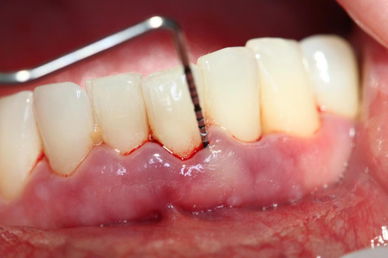 """Bác sỹ tư vấn """"răng hàm lung lay có nên nhổ không"""""""