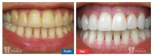 Giá chụp răng sứ thẩm mỹ bao nhiêu tiền? Quá trình chụp răng sứ? 13