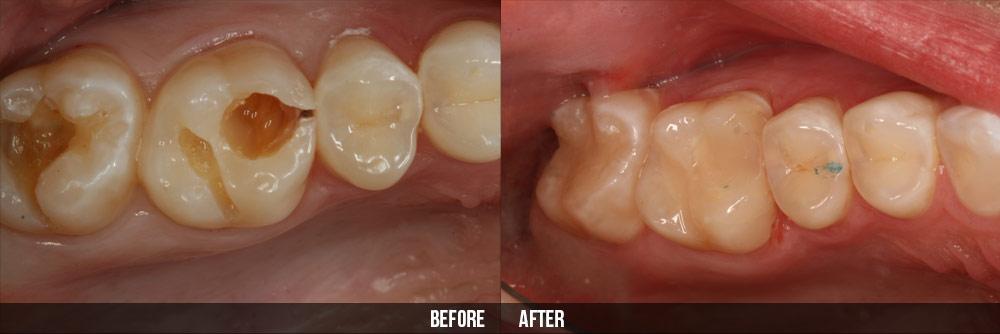 Làm sao để phục hình răng vỡ nhanh và hiệu quả nhất?