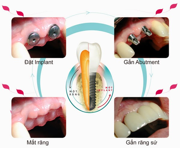 Một số lưu ý khi cắm răng implant bạn cần biết 2