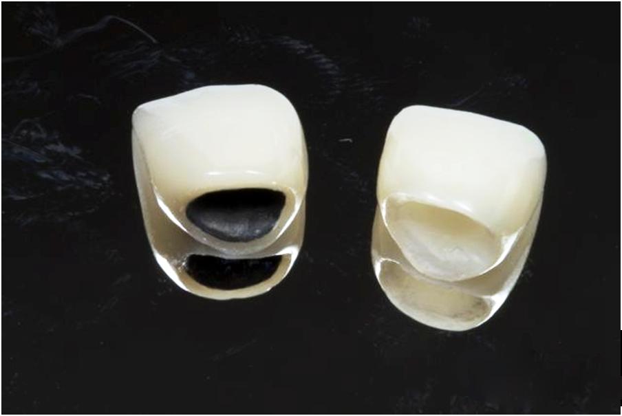 """Tư vấn: """"Trồng Răng Hàm bằng loại nào phù hợp nhất?"""" - ảnh 1"""