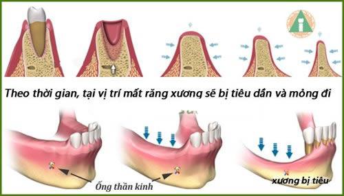 Giải đáp thắc mắc từ A - Z về bệnh tiêu xương răng  1