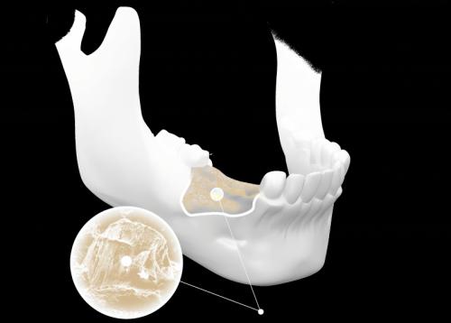 Tiêu xương răng chữa bằng cách nào là tốt nhất? 1
