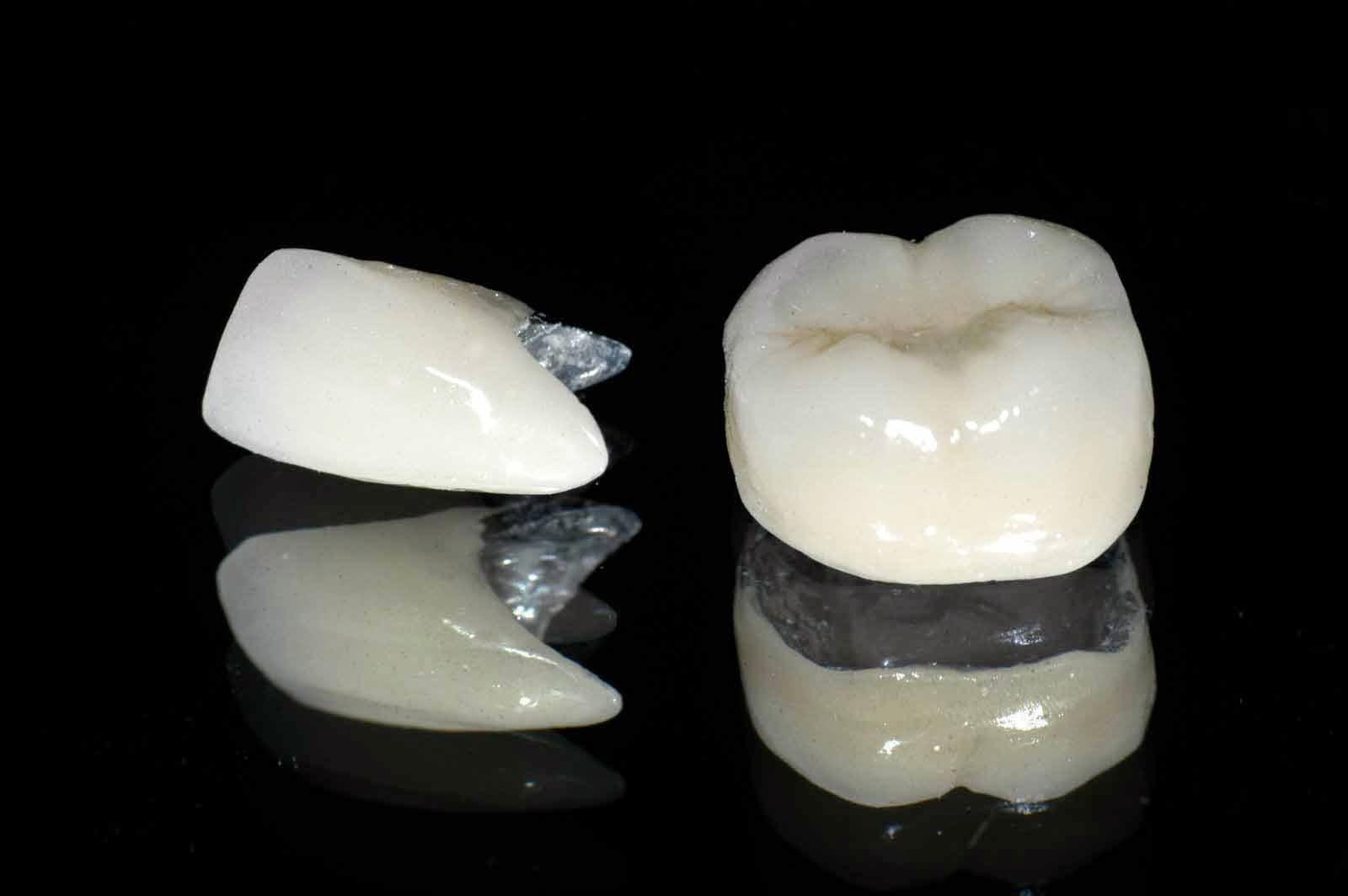"""Trồng răng sứ Titan """"CAM KẾT"""" phục hình lại răng đẹp thẩm mỹ"""