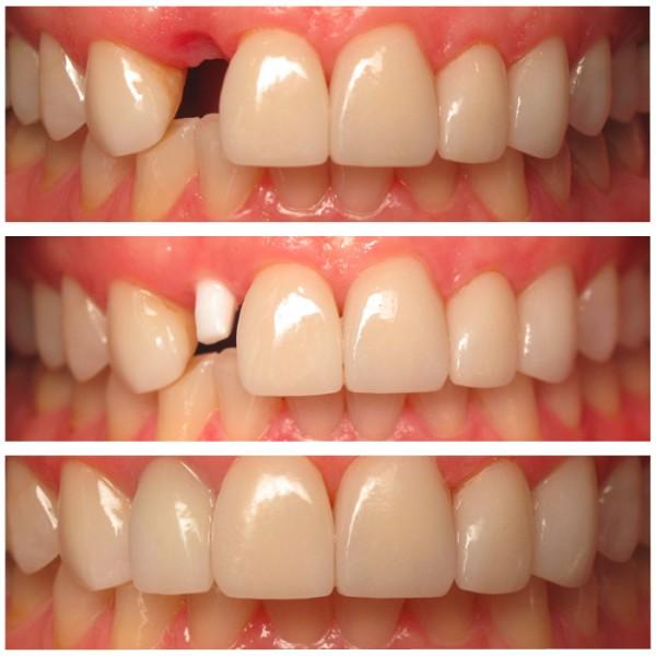 Cấy ghép răng implant - Bền như răng thật 99,9% 543