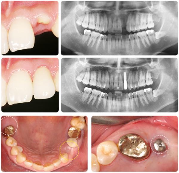 Cấy ghép răng implant - Bền như răng thật 99,9% 564