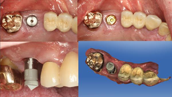 Cấy ghép răng implant - Bền như răng thật 99,9% 31