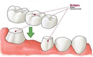 Làm cầu răng có đau không và công nghệ nào tốt 1