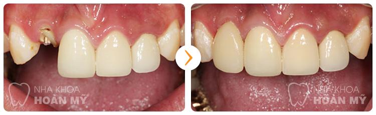 Trồng răng giả như thế nào để đảm bảo chất lượng Nhất 2016