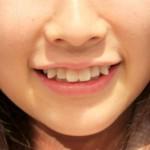 Trồng răng khểnh đẹp cho nụ cười tỏa nắng