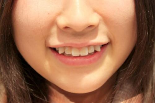 Trồng răng khểnh đẹp cho nụ cười tỏa nắng 1