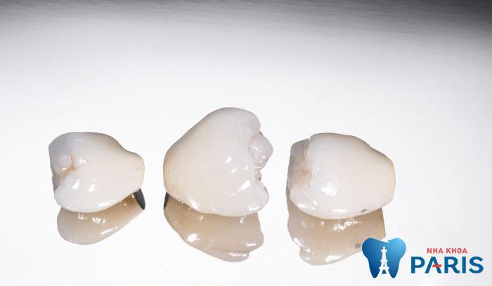 Răng sứ có bền không? Chuyên gia giải đáp thắc mắc