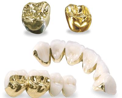 Đánh giá về dịch vụ làm răng vàng - Nên hay không nên?  1