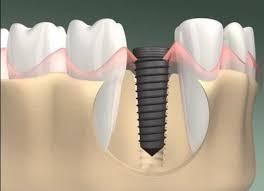 Hướng dẫn chọn trồng chân răng giả TỐT NHẤT cho răng bị mất
