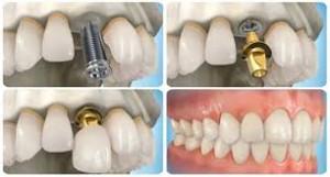Hướng dẫn chọn trồng chân răng giả TỐT NHẤT cho răng bị mất - 2