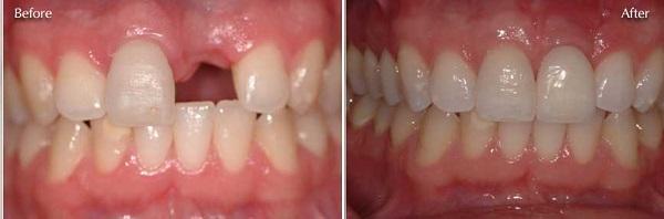 Trồng răng cửa giá bao nhiêu là hợp lý nhất? 2