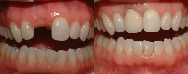 Giá răng giả cố định bao nhiêu tiền? 2