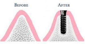 """Tư vấn: """"Trồng răng khi bị tiêu xương có phức tạp không?"""""""