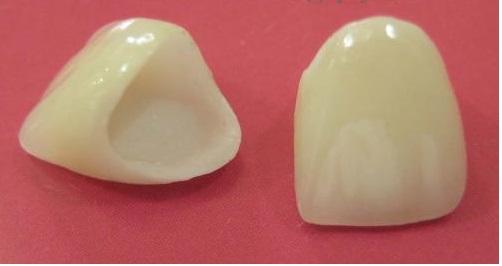 Làm mão răng sứ - Khắc phục răng xấu và xỉn màu 2